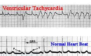ecg-ventricular-tachycardia