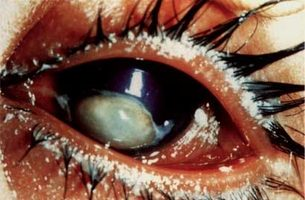 Night Blindness And Xerophthalmia It S Causes And