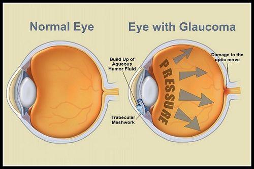 glaucoma-eye-diagram