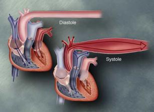 hypertension20